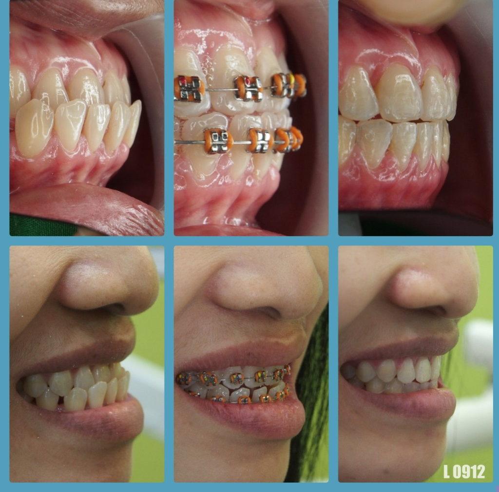 ผลงานจัดฟันของเรา | คลินิกศูนย์ทันตกรรมปากน้ำ image 2