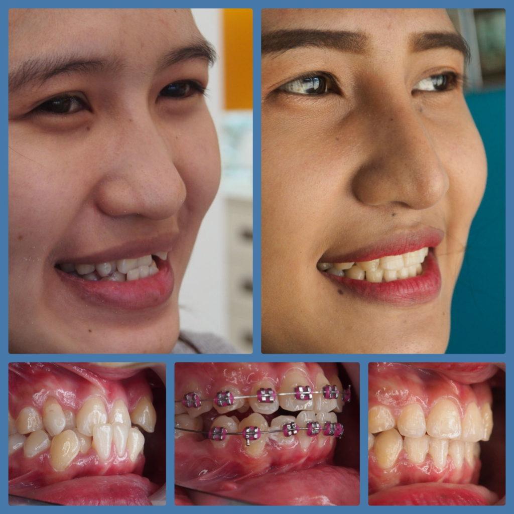 ผลงานจัดฟันของเรา | คลินิกศูนย์ทันตกรรมปากน้ำ image 3