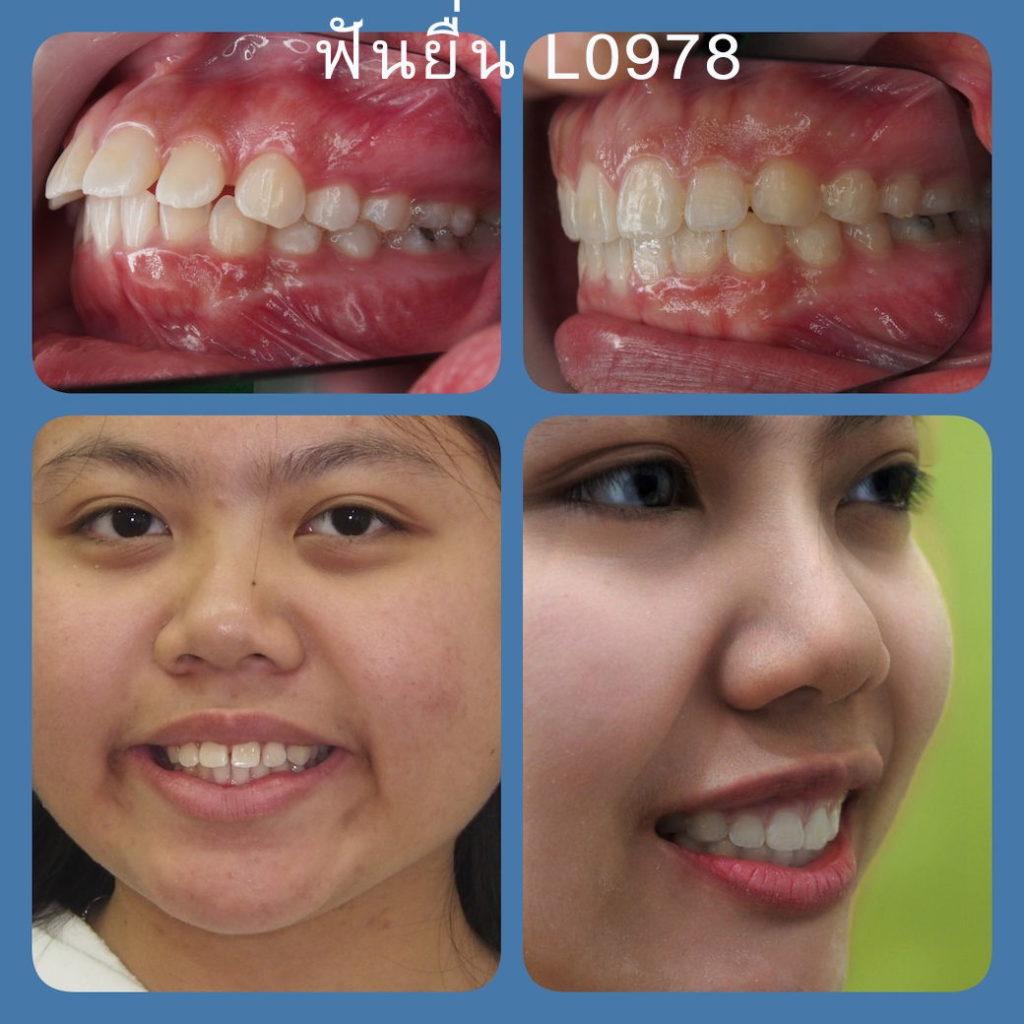 ผลงานจัดฟันของเรา | คลินิกศูนย์ทันตกรรมปากน้ำ image 6