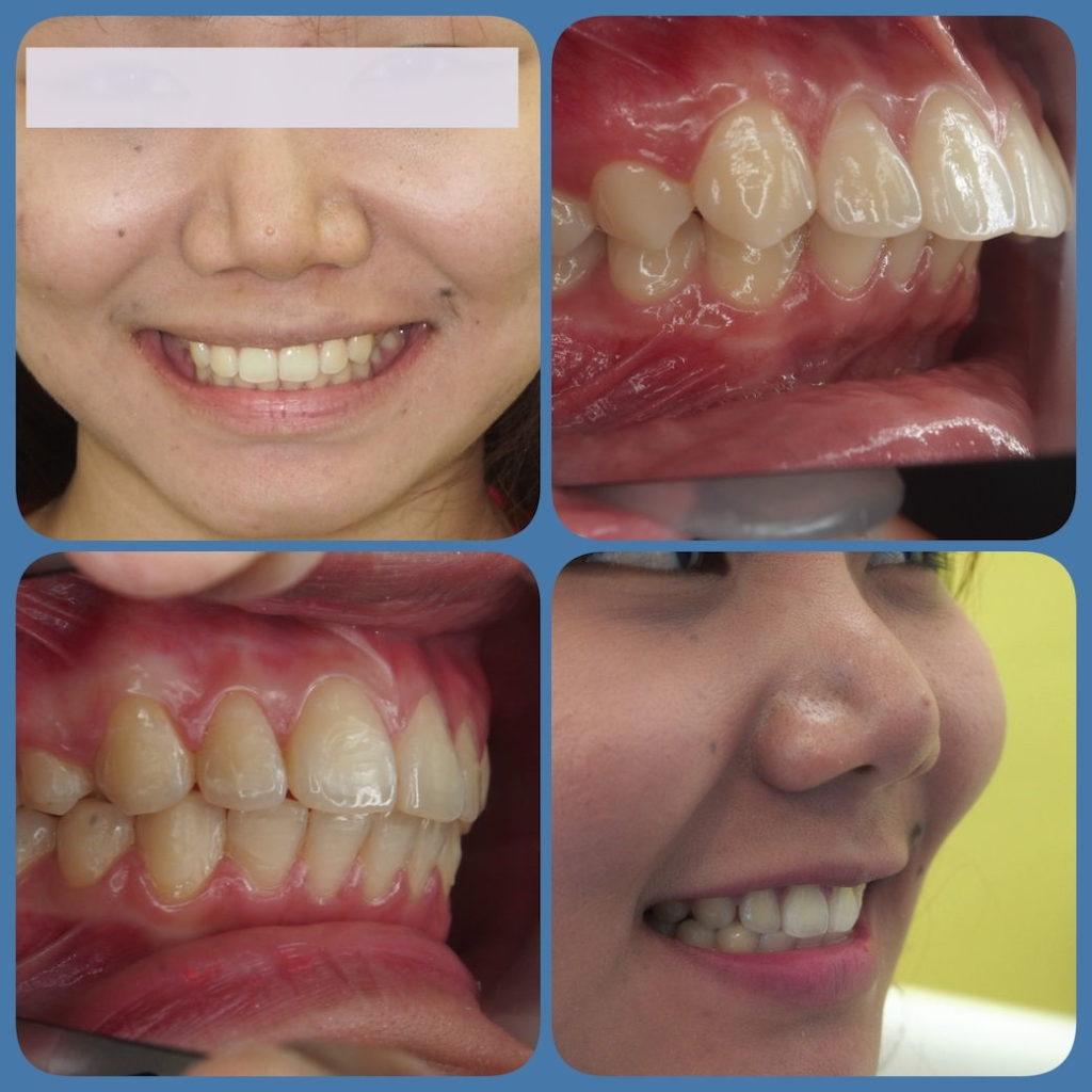 ผลงานจัดฟันของเรา | คลินิกศูนย์ทันตกรรมปากน้ำ image 5