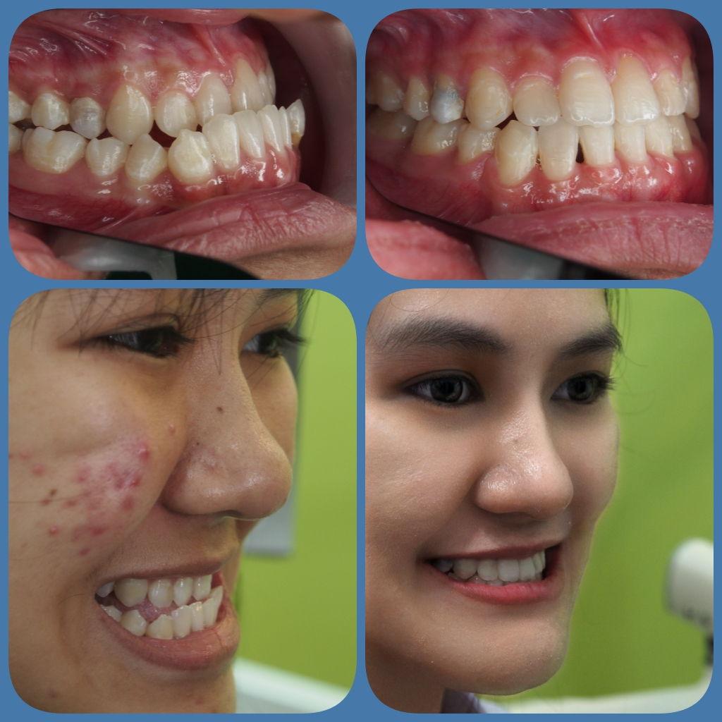 ผลงานจัดฟันของเรา | คลินิกศูนย์ทันตกรรมปากน้ำ image 7