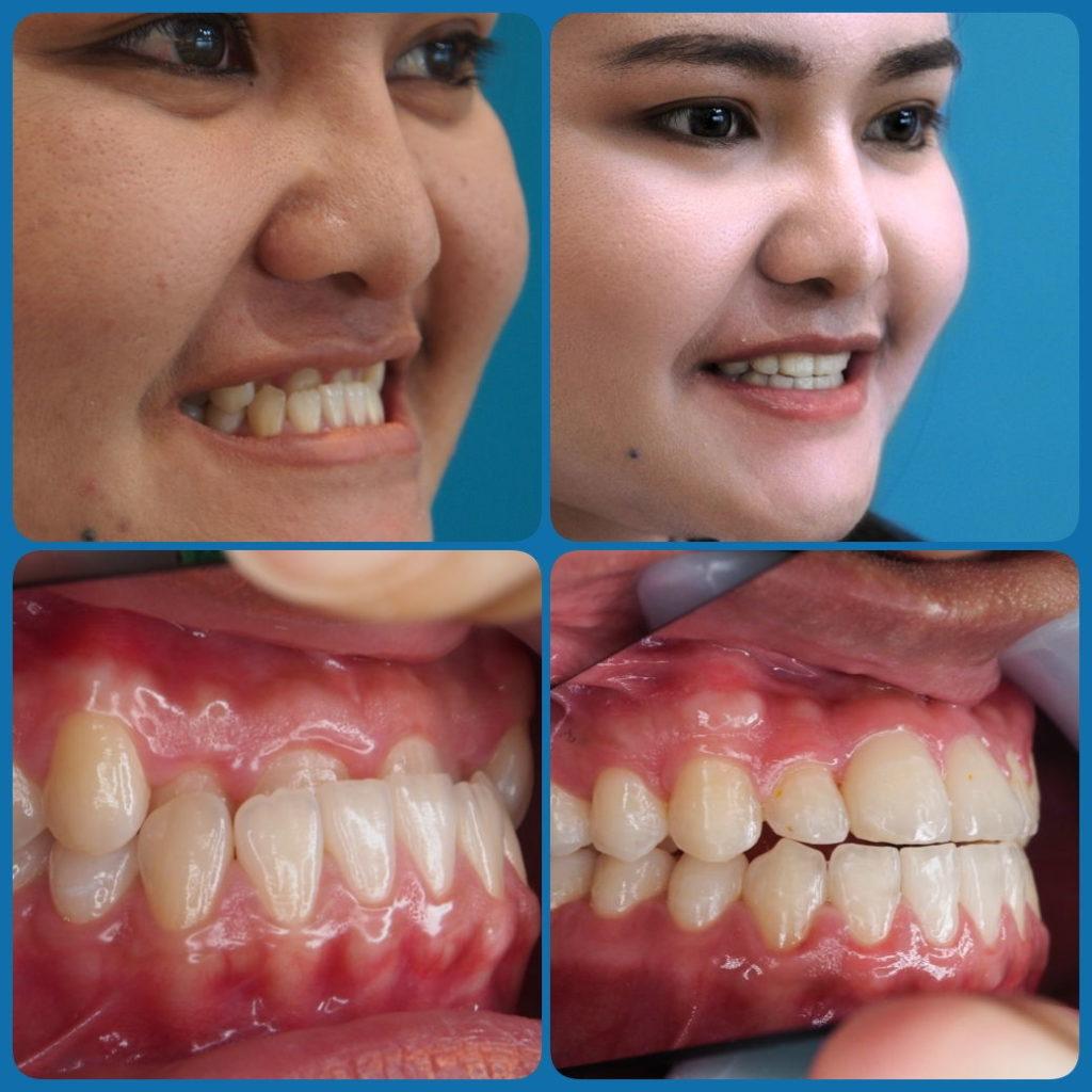 ผลงานจัดฟันของเรา | คลินิกศูนย์ทันตกรรมปากน้ำ image 8