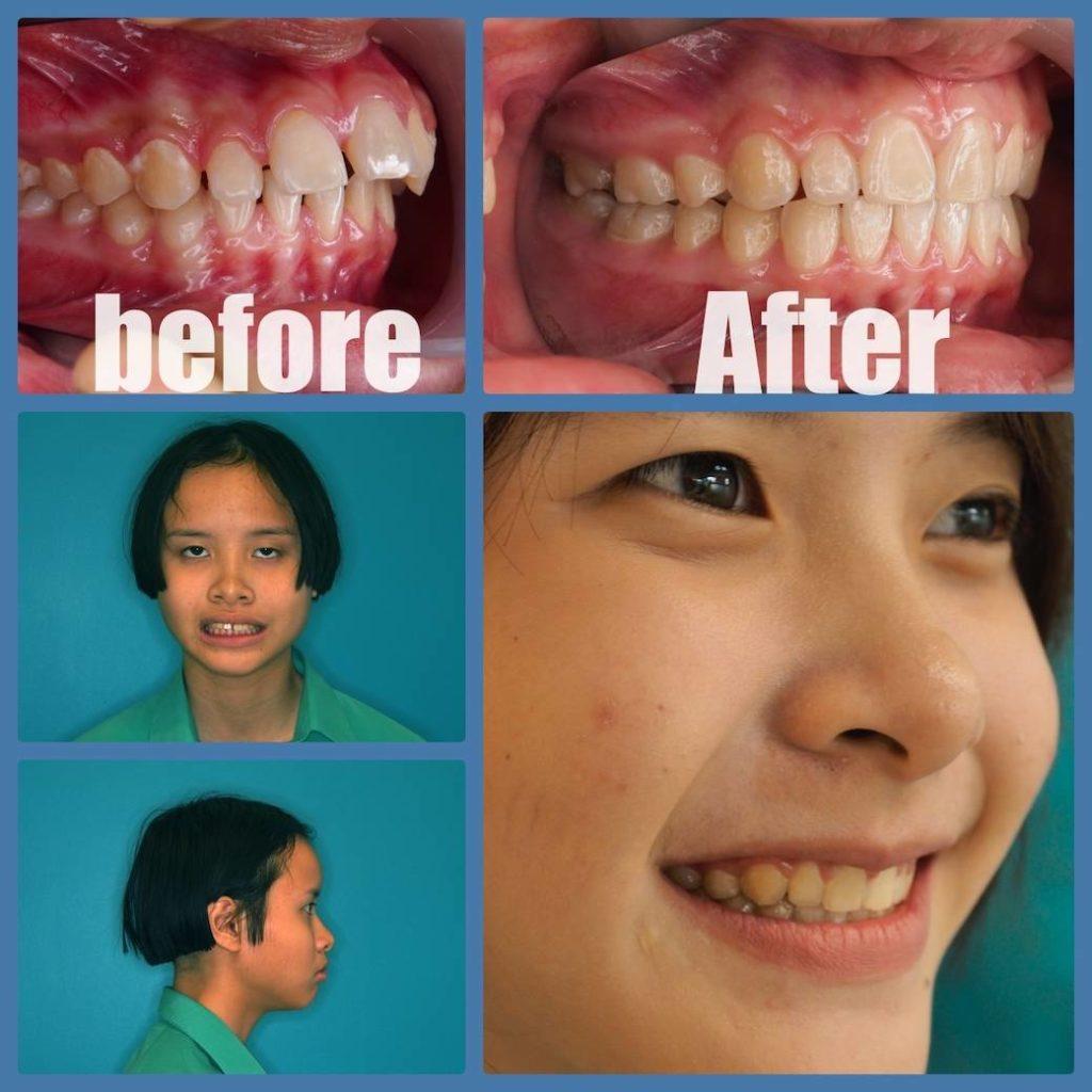 ผลงานจัดฟันของเรา | คลินิกศูนย์ทันตกรรมปากน้ำ image 1