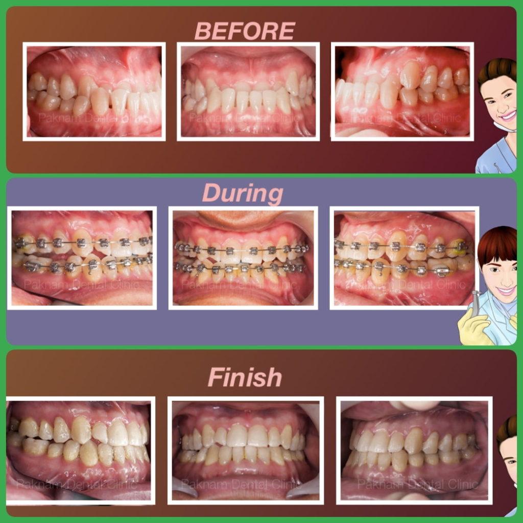 ผลงานจัดฟันของเรา | คลินิกศูนย์ทันตกรรมปากน้ำ image 13