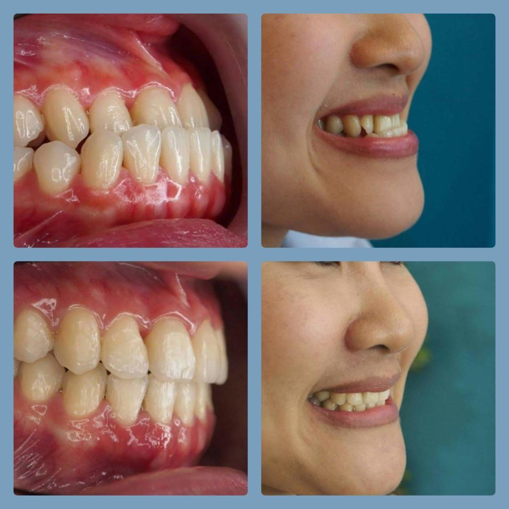 ผลงานจัดฟันของเรา | คลินิกศูนย์ทันตกรรมปากน้ำ image 14