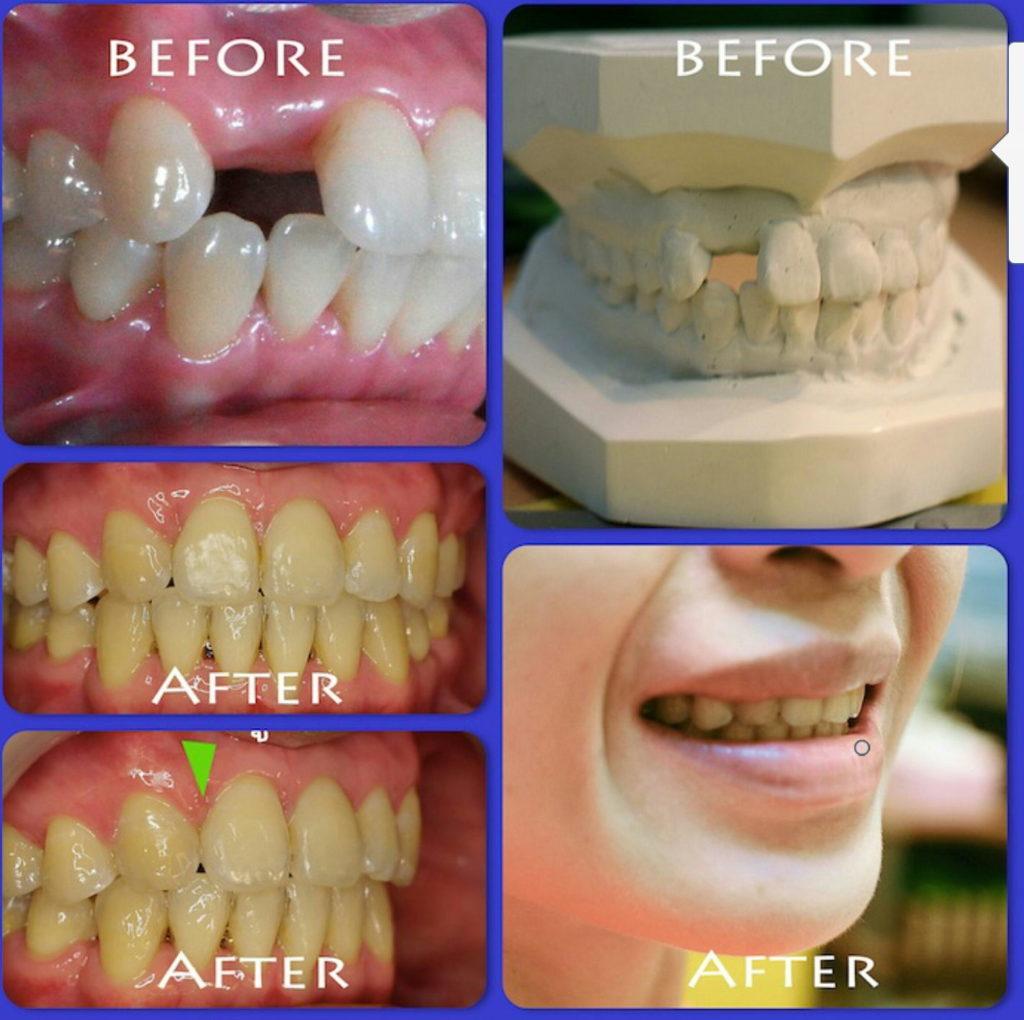 ผลงานจัดฟันของเรา | คลินิกศูนย์ทันตกรรมปากน้ำ image 15
