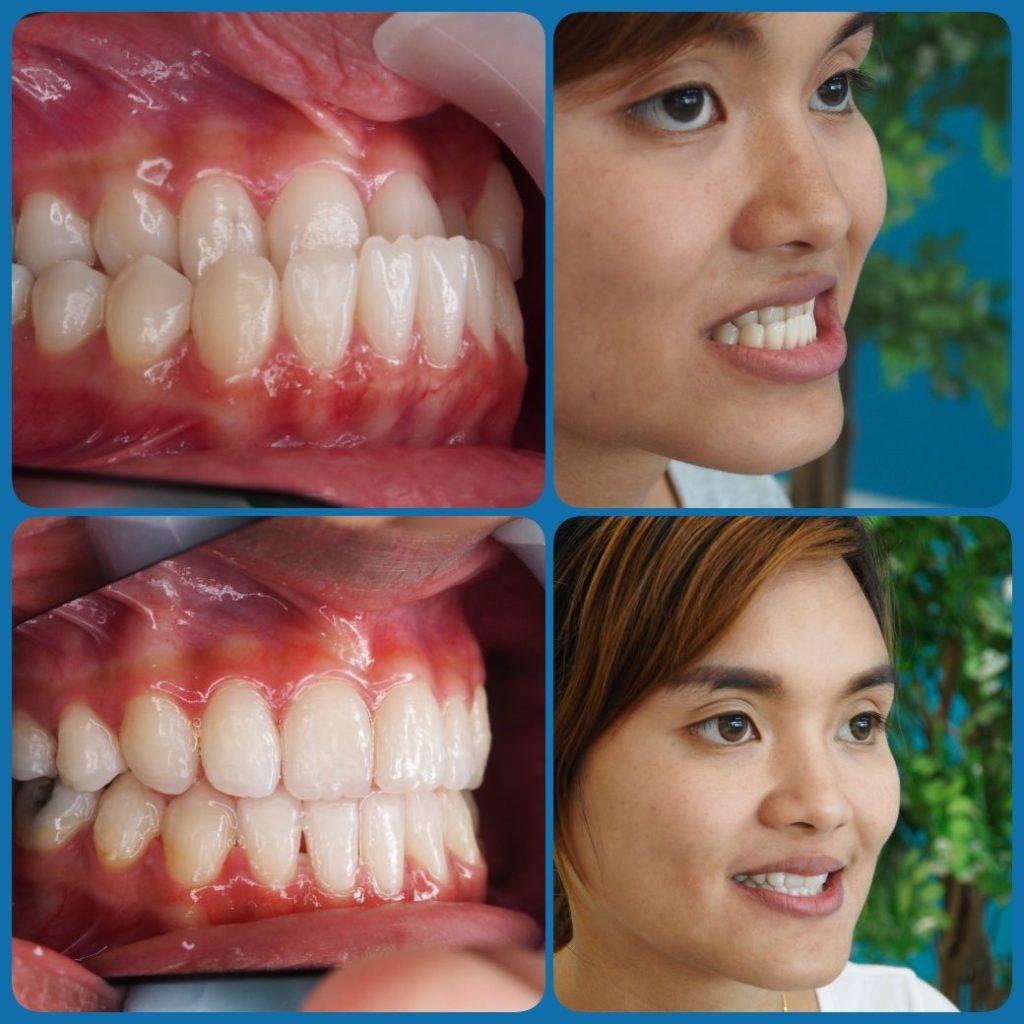 ผลงานจัดฟันของเรา | คลินิกศูนย์ทันตกรรมปากน้ำ image 10