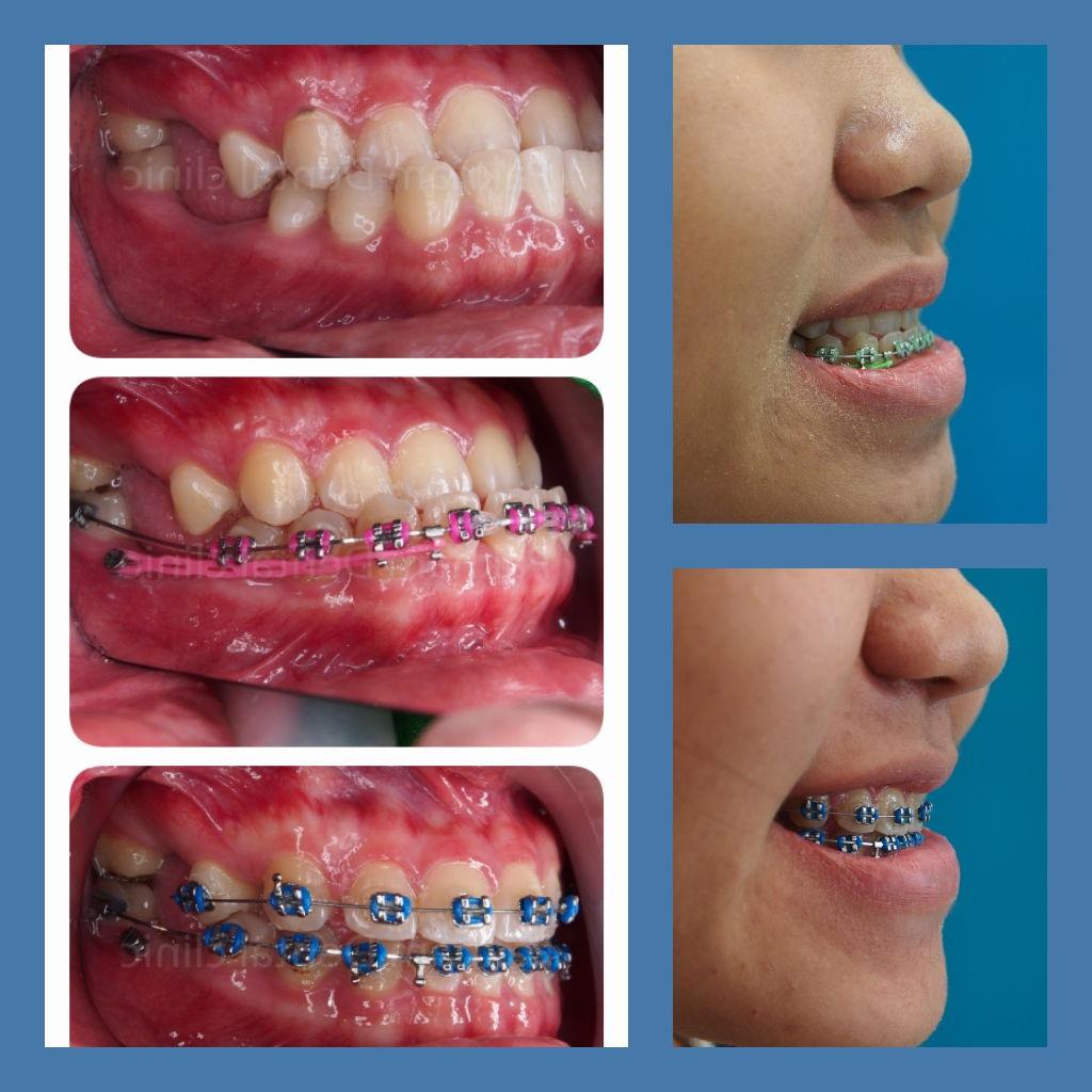 ผลงานจัดฟันของเรา | คลินิกศูนย์ทันตกรรมปากน้ำ image 12