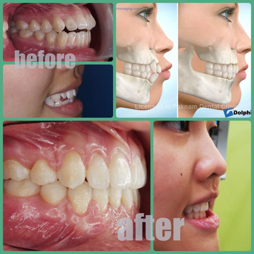 ผลงานจัดฟันของเรา | คลินิกศูนย์ทันตกรรมปากน้ำ image 17