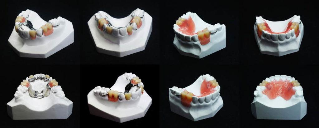 ฟันปลอม | คลินิกศูนย์ทันตกรรมปากน้ำ image 4