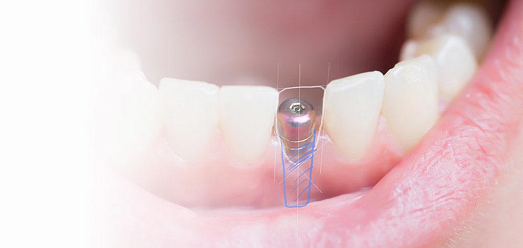 หน้าแรก | คลินิกศูนย์ทันตกรรมปากน้ำ image 10