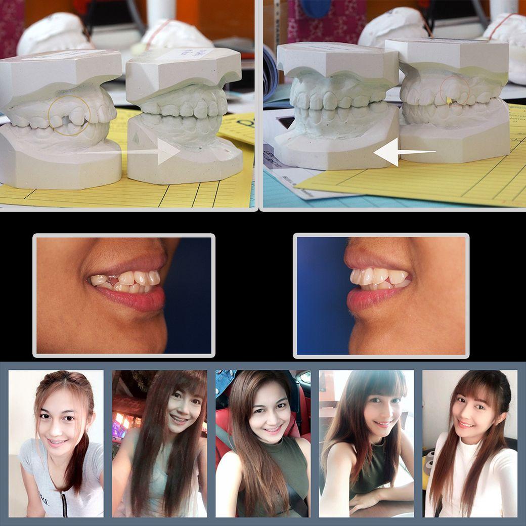 ผลงานจัดฟันของเรา | คลินิกศูนย์ทันตกรรมปากน้ำ image 22