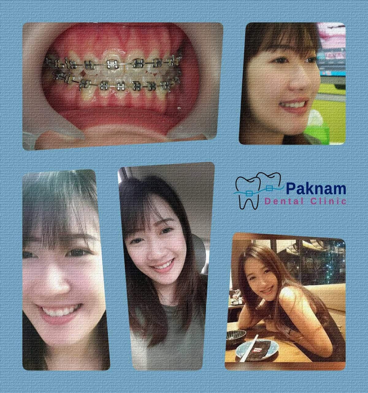 ผลงานจัดฟันของเรา | คลินิกศูนย์ทันตกรรมปากน้ำ image 26