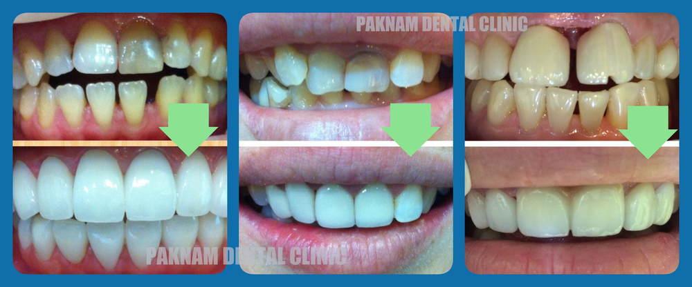 วีเนียร์ เคลือบผิวฟัน | คลินิกศูนย์ทันตกรรมปากน้ำ image 1