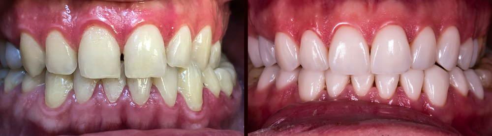 วีเนียร์ เคลือบผิวฟัน | คลินิกศูนย์ทันตกรรมปากน้ำ image 2